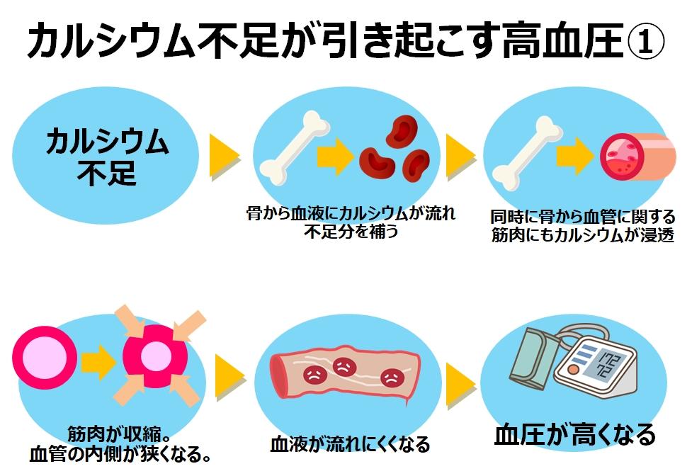カルシウム不足と高血圧の関係