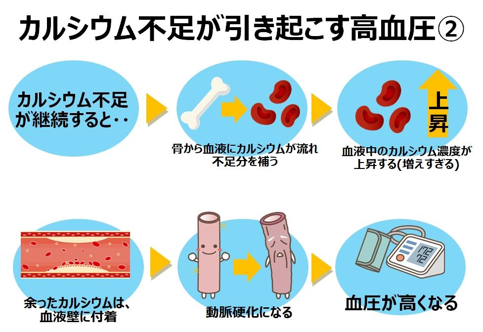 カルシウム不足が引き起こす高血圧の原因